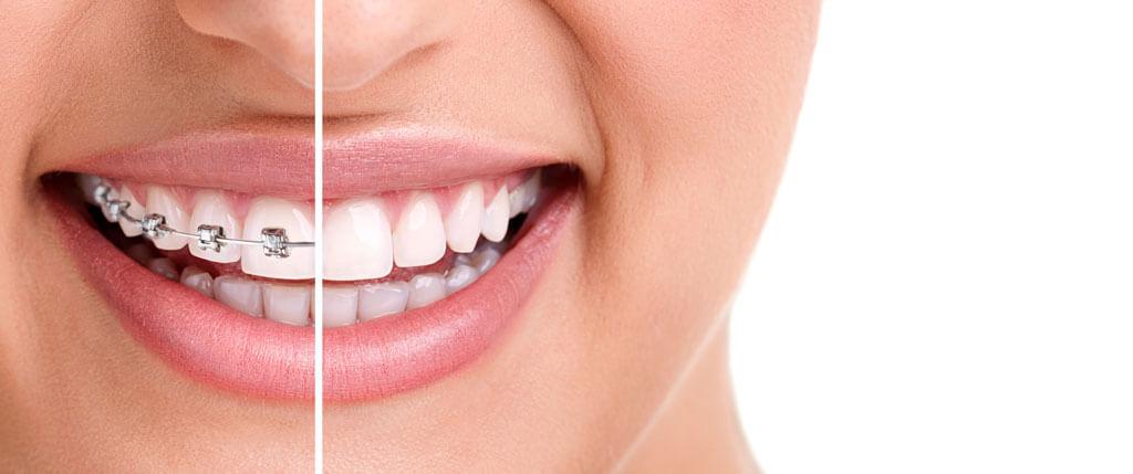 لبخند زیبا بعد از ارتودنسی