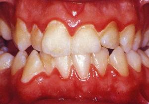 در ارتودنسی کدام دندان را میشکنند، بیماری لثه