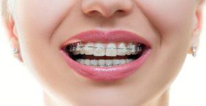 در ارتودنسی کدام دندان را میشکنند