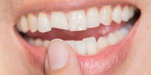 در ارتودنسی کدام دندان را میشکنند، شکستن دندان