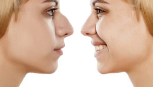 ارتودنسی همزمان با عمل بینی