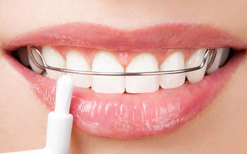 ارتودنسی دندان جلو