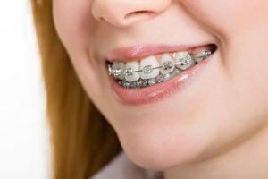 ارتودنسی دندان چگونه است