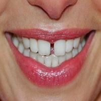 ارتودنسی فاصله دندان جلو چگونه انجام می گیرد؟
