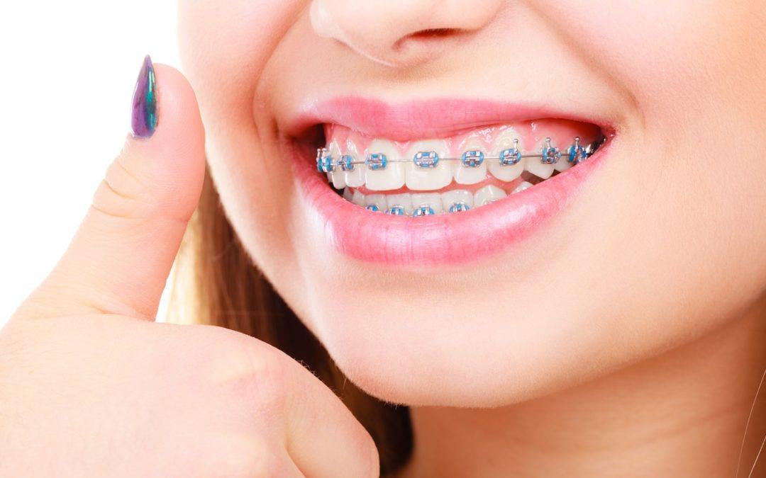 ضرر های ارتودنسی دندان-1